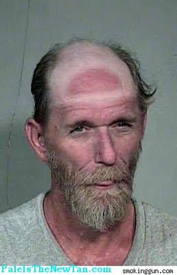 hat tan line